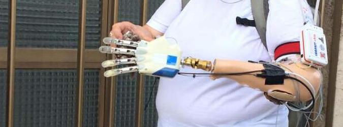 Mano bionica impiantata a 55enne italiana