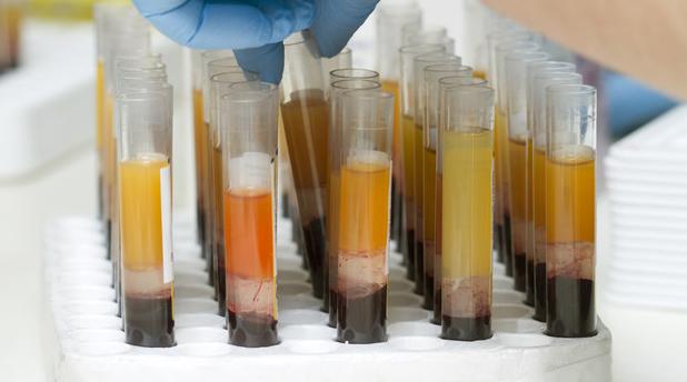 Raccolta plasma iperimmune in tutta l'Isola